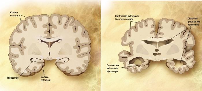 De la bioneuroemoción y elAlzheimer.